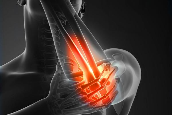 tennis-elbow-pain-bw
